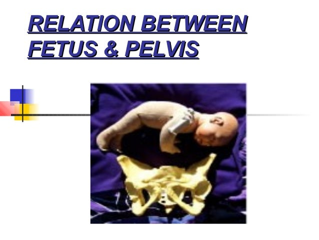 RELATION BETWEENFETUS & PELVIS