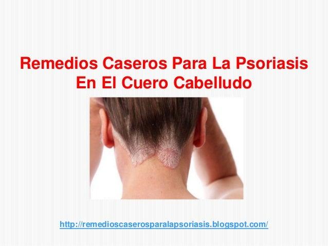 http://remedioscaserosparalapsoriasis.blogspot.com/Remedios Caseros Para La PsoriasisEn El Cuero Cabelludo