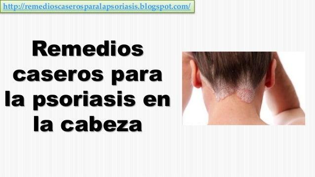 La foto la psoriasis el miembro