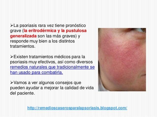 La psoriasis sobre la cabeza del ungüento