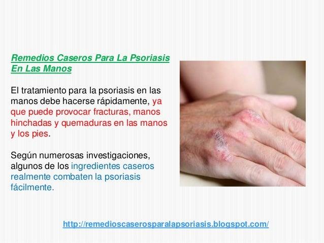 El medio de la psoriasis en las rodillas