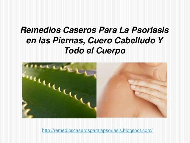 Remedios Caseros Para La Psoriasisen las Piernas, Cuero Cabelludo YTodo el Cuerpohttp://remedioscaserosparalapsoriasis.blo...