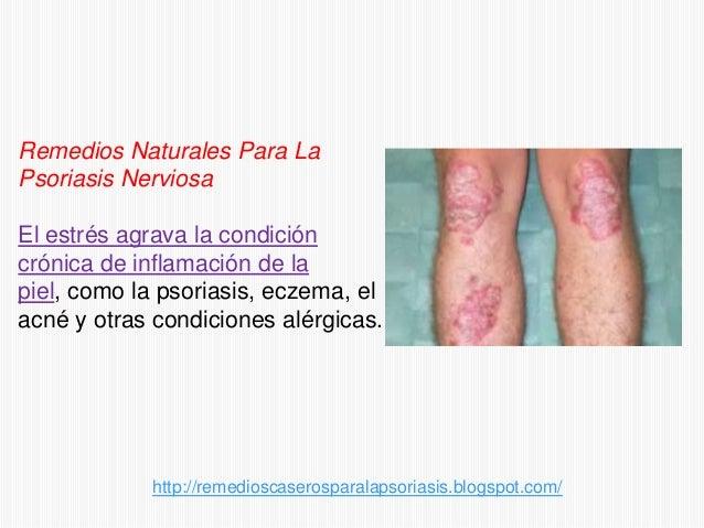 Remedios naturales para la psoriasis nerviosa