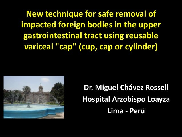 """New technique for safe removal of impacted foreign bodies in the upper gastrointestinal tract using reusable variceal """"cap..."""