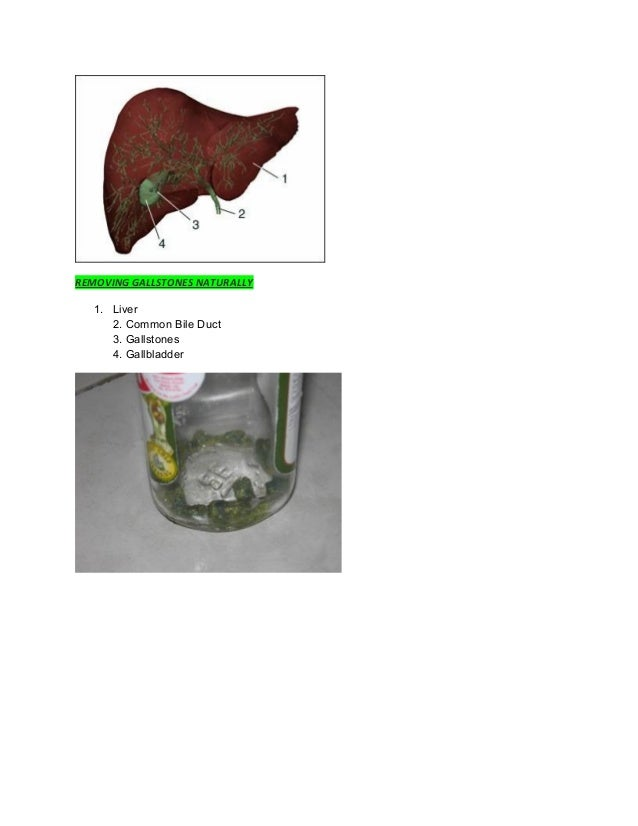 REMOVING GALLSTONES NATURALLY 1. Liver 2. Common Bile Duct 3. Gallstones 4. Gallbladder