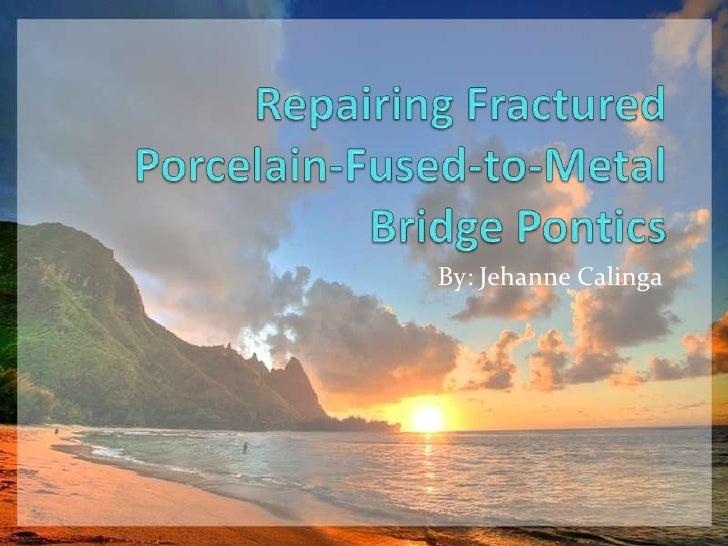 Repairing fractured pfm