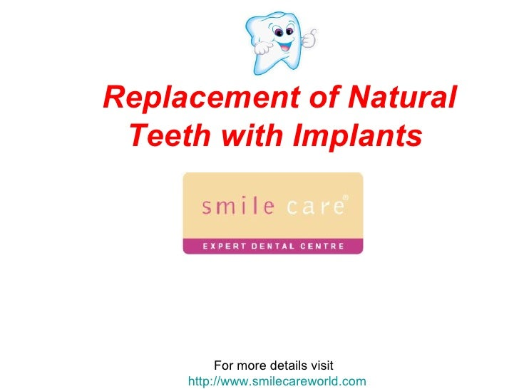 Replacement of Natural Teeth with Implants   For more details visit  http://www.smilecareworld.com