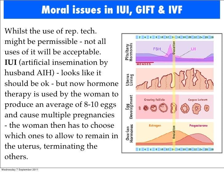 Reproductive Technologies: Part 2