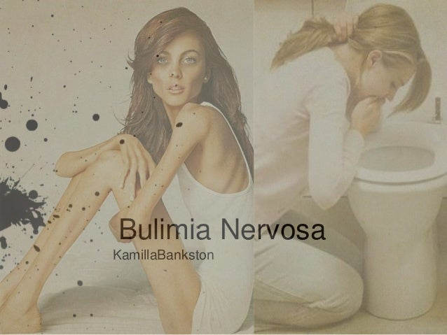 a research on bulimia nervosa