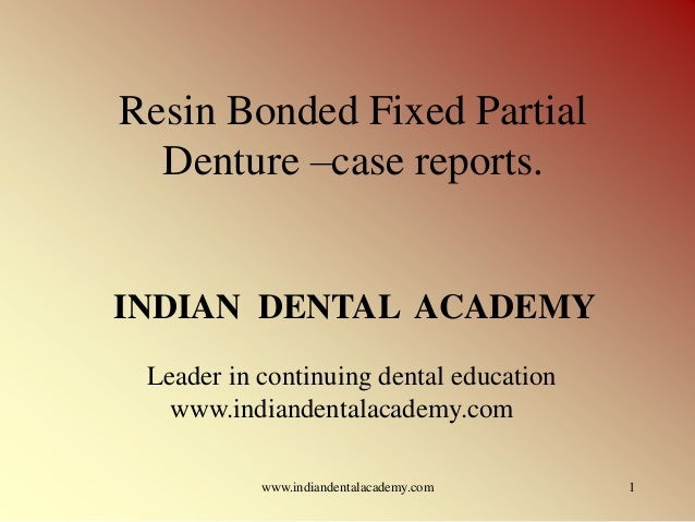 Resin Bonded Fixed Partial Denture –case reports.  INDIAN DENTAL ACADEMY Leader in continuing dental education www.indiand...