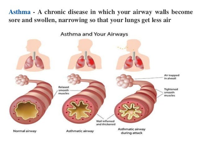 respiratory disease Repeated and long-term exposure to certain irritants on the job can lead to an array of lung diseases that may have lasting effects, even after exposure ceases.