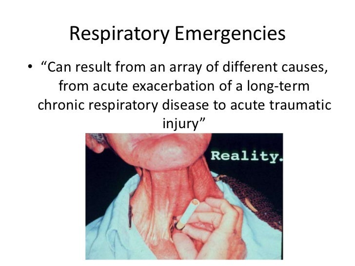 nursing case study respiratory system Nursing care for a patient scenario 2 case study - nursing care for a patient scenario (mrs jones.