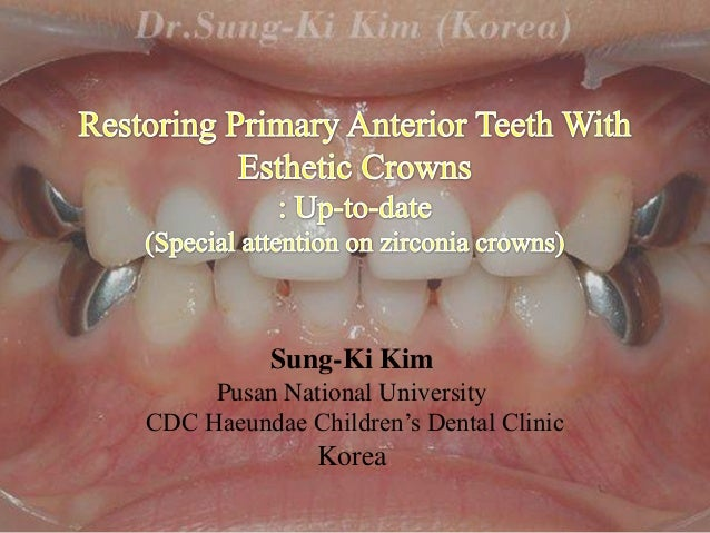 Restoring primary anterior teeth with esthetic crowns