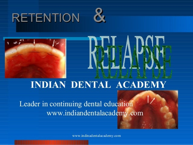 RETENTION  &  INDIAN DENTAL ACADEMY Leader in continuing dental education www.indiandentalacademy.com www.indinadentalacad...