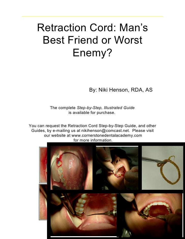 Retraction Cord: Man's     Best Friend or Worst           Enemy?                              By: Niki Henson, RDA, AS    ...