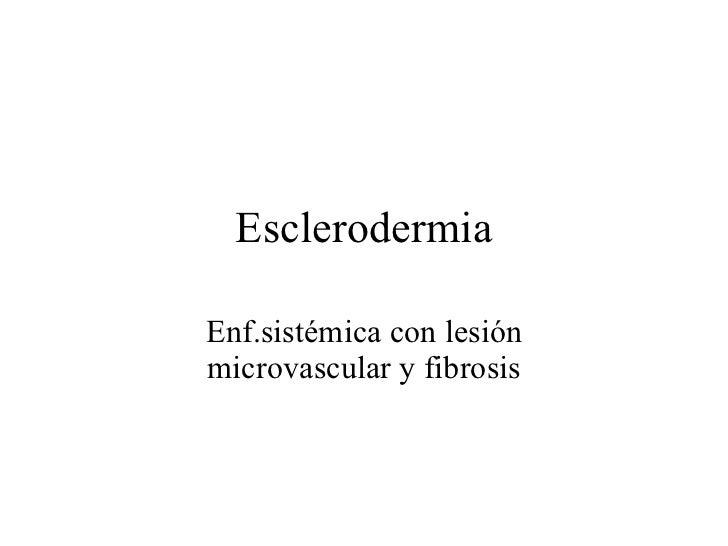 ReumatologíA  Esclerodermia