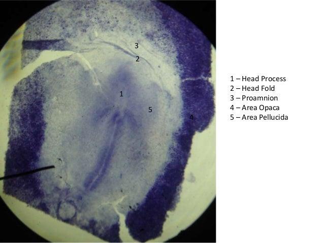 3    2                1 – Head Process                2 – Head Fold1               3 – Proamnion        5       4 – Area O...