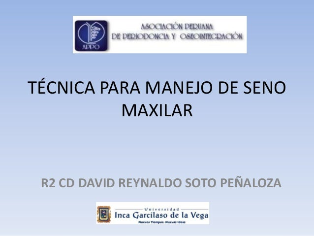 """REVISTA DE REVISTAS APPO. """"TÉCNICAS PARA EL MANEJO DE LOS SENOS MAXILARES"""". PARTE 1"""
