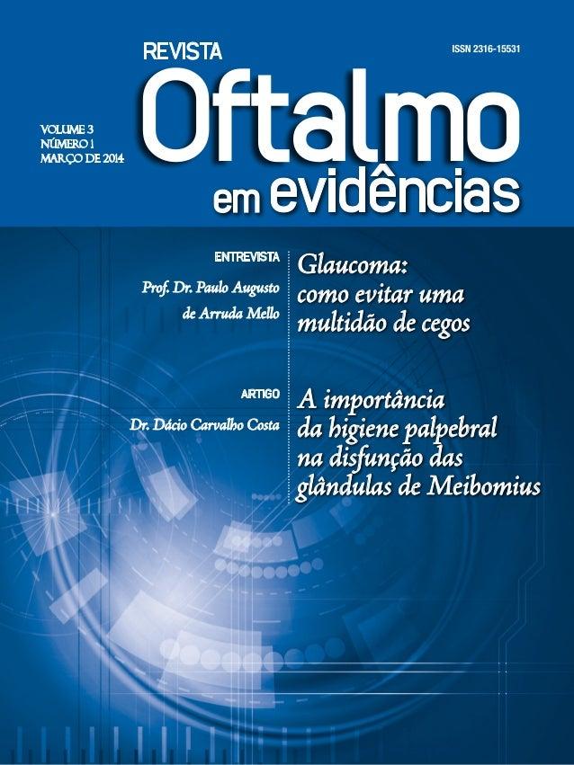VOLUME 3 NÚMERO 1 MARÇO DE 2014 ENTREVISTA Prof. Dr. Paulo Augusto de Arruda Mello ARTIGO Dr. Dácio Carvalho Costa Glaucom...
