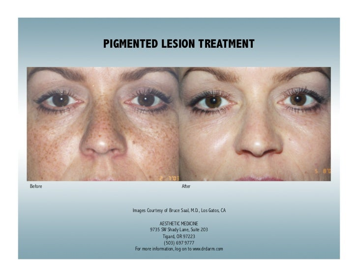 PIGMENTED LESION TREATMENTBefore                                  After              Images Courtesy of Bruce Saal, M.D., ...
