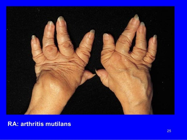 an experience of a survivor of rheumatoid arthritis