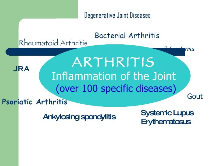 ARTHRITIS  Inflammation of the Joint (over 100 specific diseases) Rheumatoid Arthritis Gout Degenerative Joint Diseases An...