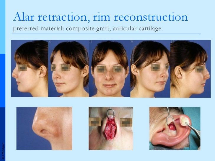 intranasal corticosteroids wikipedia