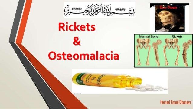 Ricket and osteomalacia
