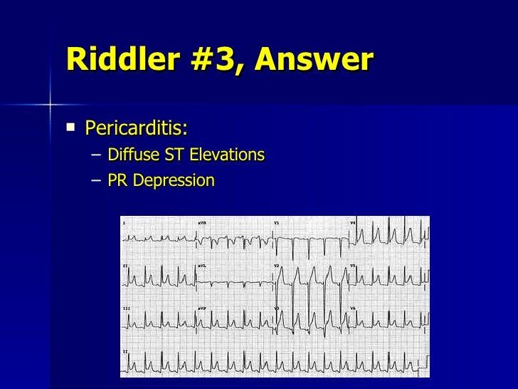 Riddler #3, Answer <ul><li>Pericarditis: </li></ul><ul><ul><li>Diffuse ST Elevations </li></ul></ul><ul><ul><li>PR Depress...