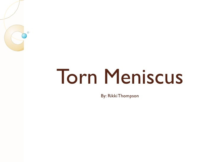 Torn Meniscus By: Rikki Thompson