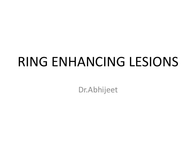 Ring enhancing lesions