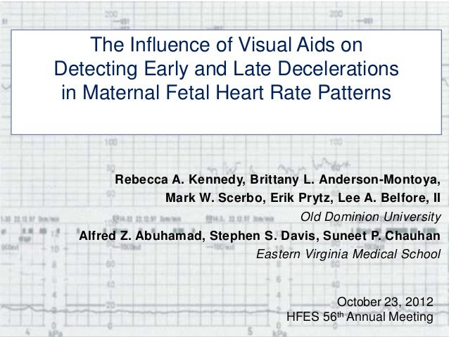 The Influence of Visual Aids onDetecting Early and Late Decelerationsin Maternal Fetal Heart Rate PatternsRebecca A. Kenne...