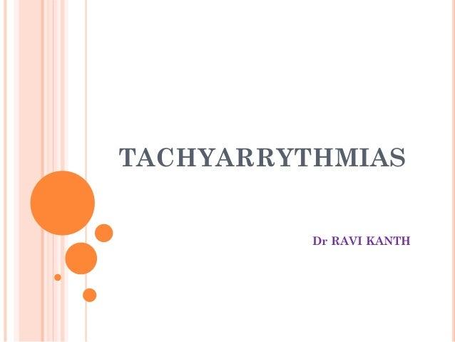 TACHYARRYTHMIAS Dr RAVI KANTH