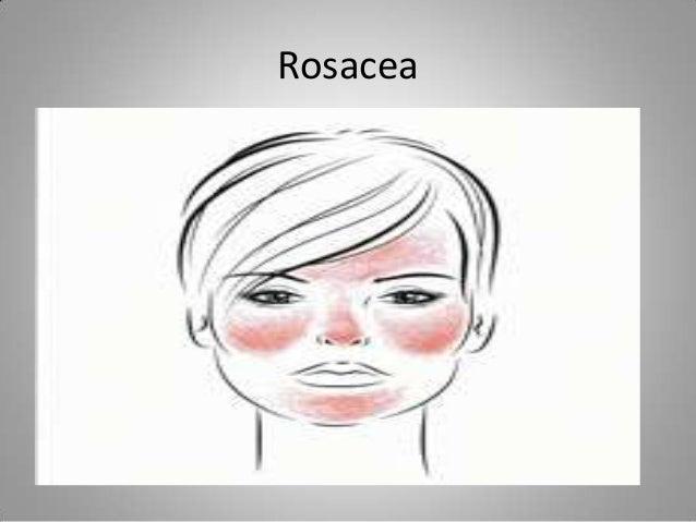 Rosacea • Facial Distribution of Rosacea • •
