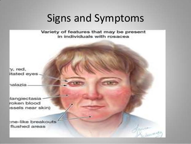 Rosacea facial swelling best treatment