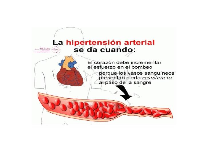 Rotafolio hipertension