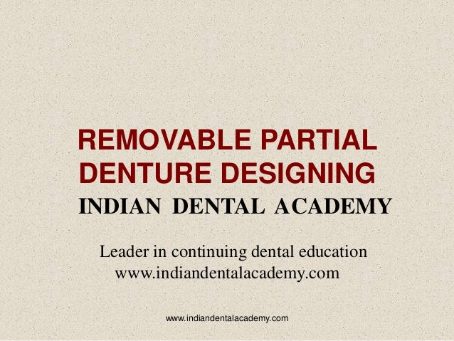 REMOVABLE PARTIAL DENTURE DESIGNING INDIAN DENTAL ACADEMY Leader in continuing dental education www.indiandentalacademy.co...