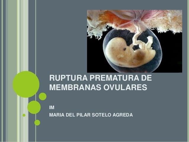 RUPTURA PREMATURA DE MEMBRANAS OVULARES IM MARIA DEL PILAR SOTELO AGREDA