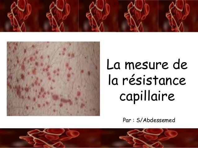 A/S La rétraction du caillot La mesure de la résistance capillaire Par : S/Abdessemed