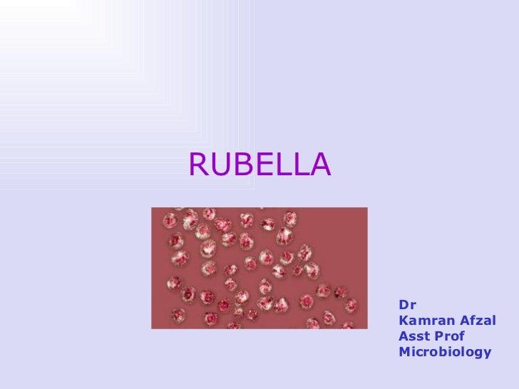 Rubella+chicken pox