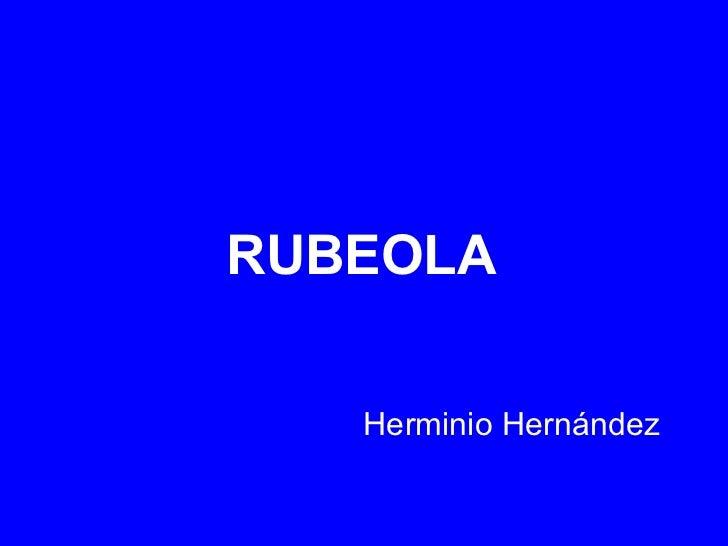 RUBEOLA Herminio Hernández