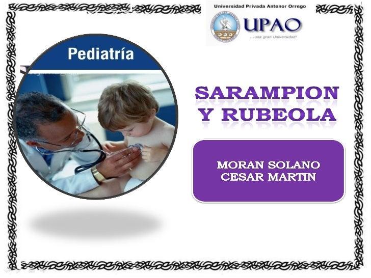 Rubeola Y Sarampion