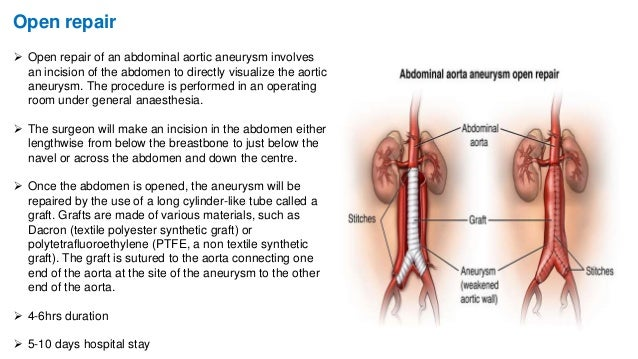 essay on abdominal aortic aneurysm