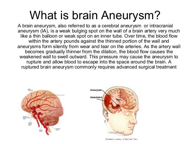 Aneurisma Cerebral pronóstico