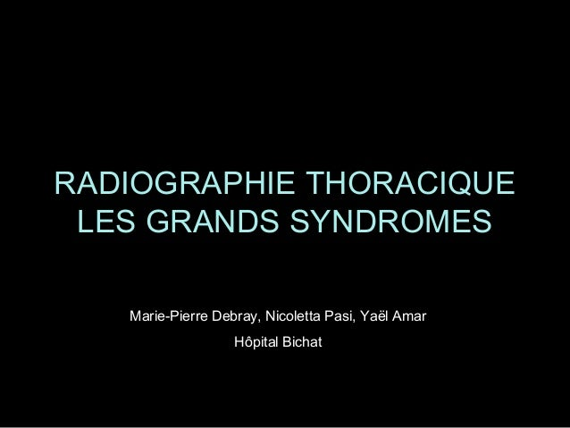 RADIOGRAPHIE THORACIQUE LES GRANDS SYNDROMES Marie-Pierre Debray, Nicoletta Pasi, Yaël Amar Hôpital Bichat