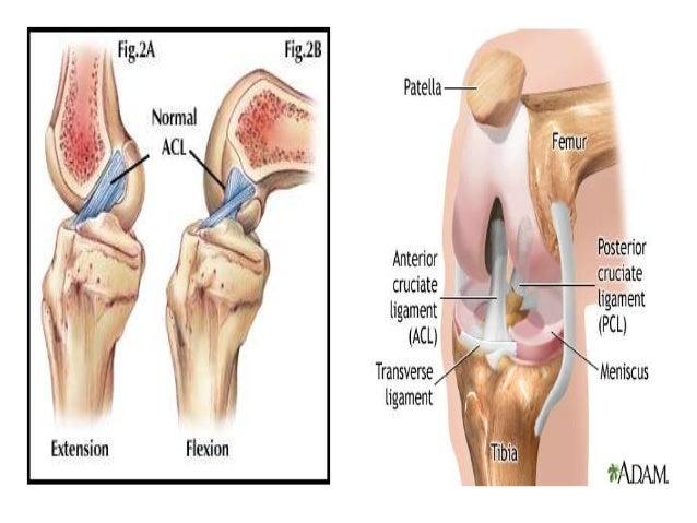 Pathophysiology Anterior Cruciate Ligament Injury