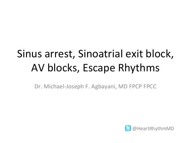 Sinus arrest, Sinoatrial exit block, AV blocks, Escape Rhythms Dr. Michael-Joseph F. Agbayani, MD FPCP FPCC  @HeartRhythmM...