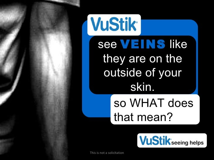 see  VEINS  like they are on the outside of your skin. so WHAT does that mean? This is not a solicitation