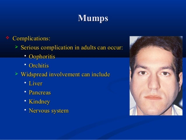 in males Mumps adult