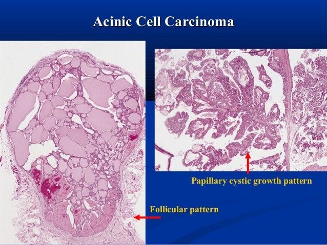 minor salivary gland tumors pdf